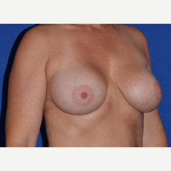45-54 year old woman treated with Breast Augmentation with Ideal Saline Breast Implant after 3105075