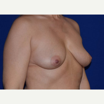 45-54 year old woman treated with Breast Augmentation with Ideal Saline Breast Implant before 3105075