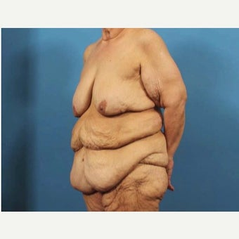 63 year old woman treated with Body Lift 1768920