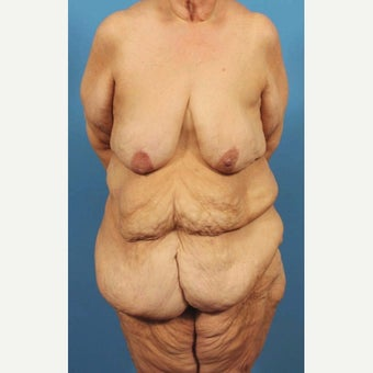 63 year old woman treated with Body Lift