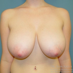 18-24 year old woman treated with Breast Reduction before 1711795