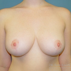 18-24 year old woman treated with Breast Reduction after 1711795