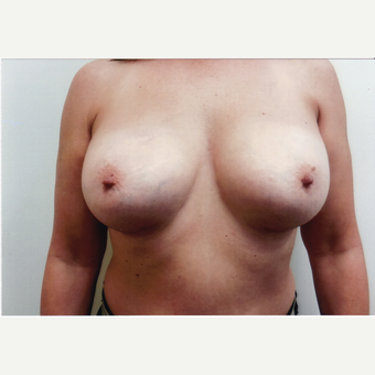 45-54 year old woman treated with Breast Implants after 3494426