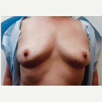 45-54 year old woman treated with Breast Implants before 3494426