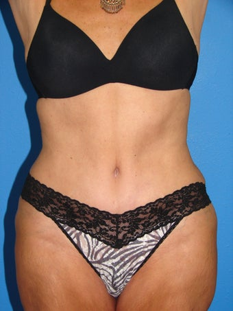 Tummy Tuck after 1412405