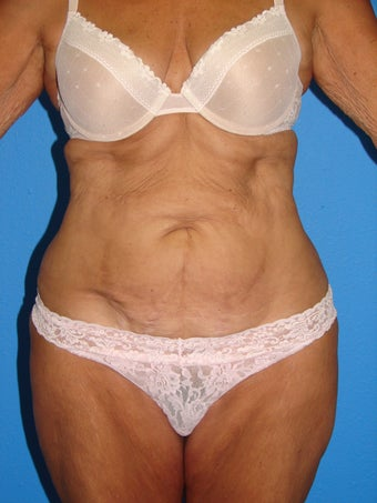 Tummy Tuck before 1412405