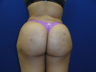 38 year old Brazilian Butt Lift after 1069864