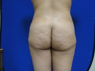 38 year old Brazilian Butt Lift before 1069864