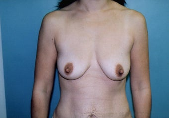 Breast Mastopexy (Lift) with Augmentation before 238394