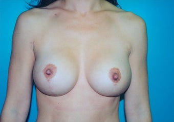Breast Mastopexy (Lift) with Augmentation after 238394