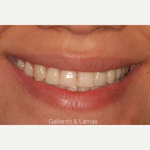 35-44 year old woman treated with Dental Implants after 3093824