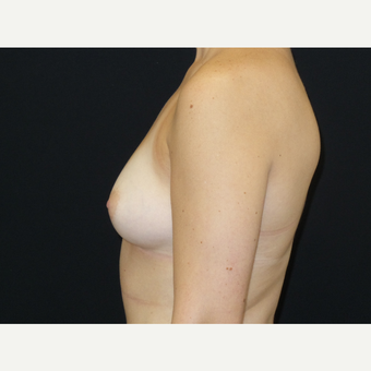 25-34 year old woman treated with Breast Implants before 3652072