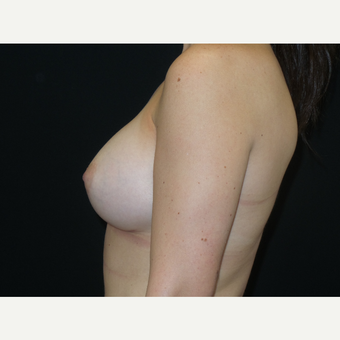 25-34 year old woman treated with Breast Implants after 3652072