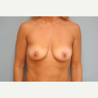35-44 year old woman treated with Breast Implants before 3301153