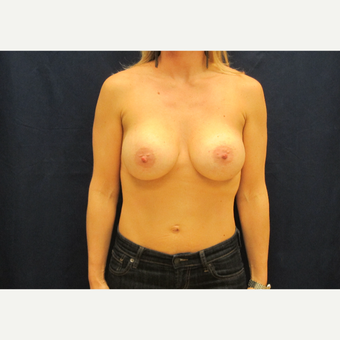 35-44 year old woman treated with Breast Implants after 3301153