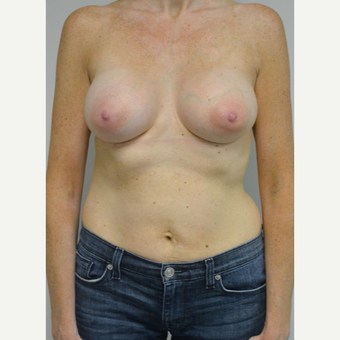 35-44 year old woman treated with Breast Implants after 3304583