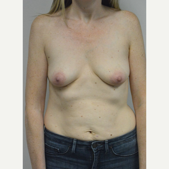 35-44 year old woman treated with Breast Implants before 3304583