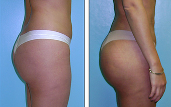 Brazilian Butt Lift Before & After after 1110779