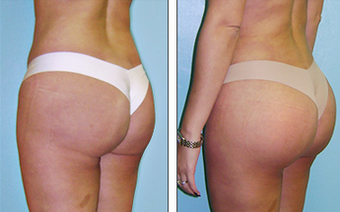 Brazilian Butt Lift Before & After before 1110779
