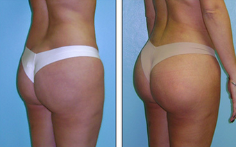 Brazilian Butt Lift Before & After 1110779