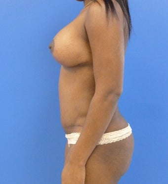 33 y.o. – female – breast augmentation with wise pattern lift, abdominoplasty; 457/421 Silicone Implants 1312449