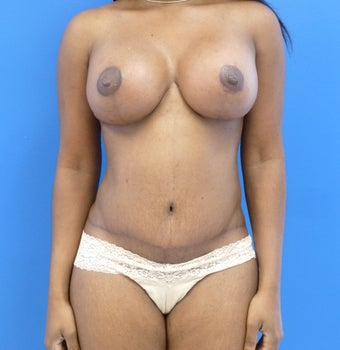 33 y.o. – female – breast augmentation with wise pattern lift, abdominoplasty; 457/421 Silicone Implants after 1312449