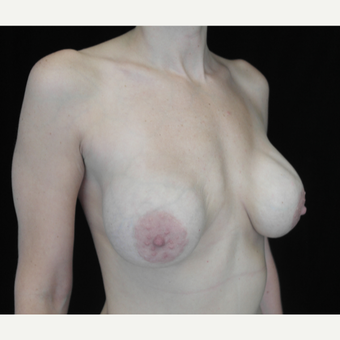 35-44 year old woman treated with Breast Implant Revision before 3265934