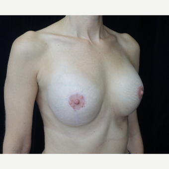 35-44 year old woman treated with Breast Implant Revision after 3265934