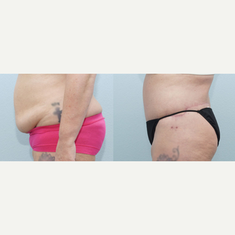 56 yr old Female - Body Lift after 3099786