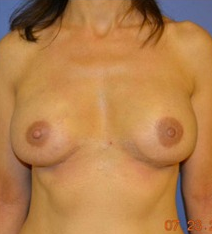45-54 year old woman after bilateral nipple sparing mastectomy and immediate implant reconstrution after 1635566