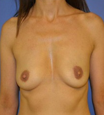 45-54 year old woman after bilateral nipple sparing mastectomy and immediate implant reconstrution before 1635566