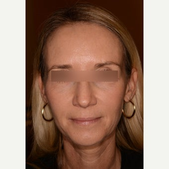 Full facial rejuvenation with Voluma and Juvederm Ultra Plus XC after 1597923