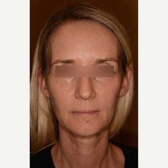 Full facial rejuvenation with Voluma and Juvederm Ultra Plus XC before 1597923