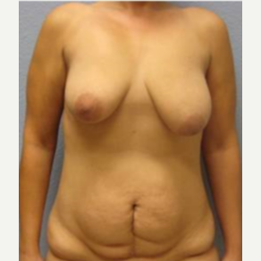 25-34 year old woman treated with Mommy Makeover before 3726222