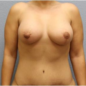 25-34 year old woman treated with Mommy Makeover after 3726222