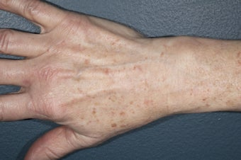Hand Rejuvenation - fat injection and photo rejuvenation  before 1171430
