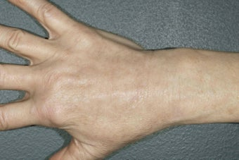 Hand Rejuvenation - fat injection and photo rejuvenation  after 1171430