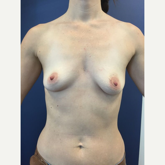 35-44 year old woman treated with Breast Augmentation before 3729153