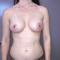 35-44 year old woman treated with Breast Augmentation after 3729153