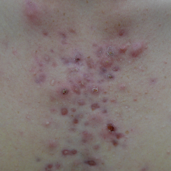 Acne scars on the chest can be treated with multiple treatment options before 3719721