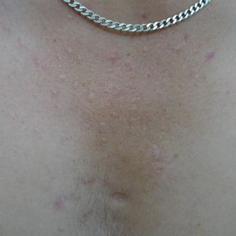 Acne scars on the chest can be treated with multiple treatment options after 3719721