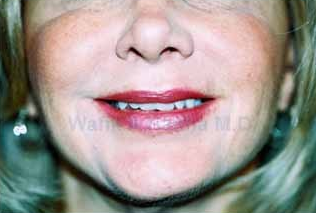 Restylane Injections 1394193