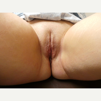 25-34 year old woman treated with Labiaplasty after 3124496