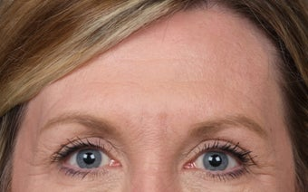 Botox and Dysport for Wrinkle Relaxation