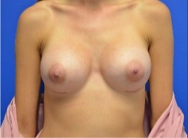 25-34 year old woman treated with Breast Augmentation after 3339132