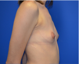 25-34 year old woman treated with Breast Augmentation 3339132