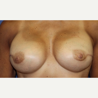 58 year old woman with a Breast Reconstruction after 3522672