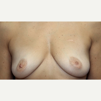 58 year old woman with a Breast Reconstruction before 3522672