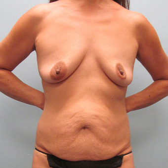 50 year old woman treated with Mommy Makeover before 3680042