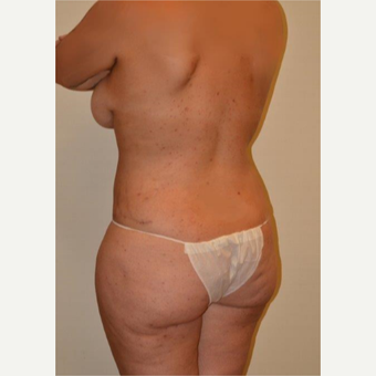 25-34 year old woman treated with Liposuction after 3658468